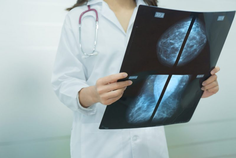 Breast Cancer Management in the TAILORx Era: Less is More